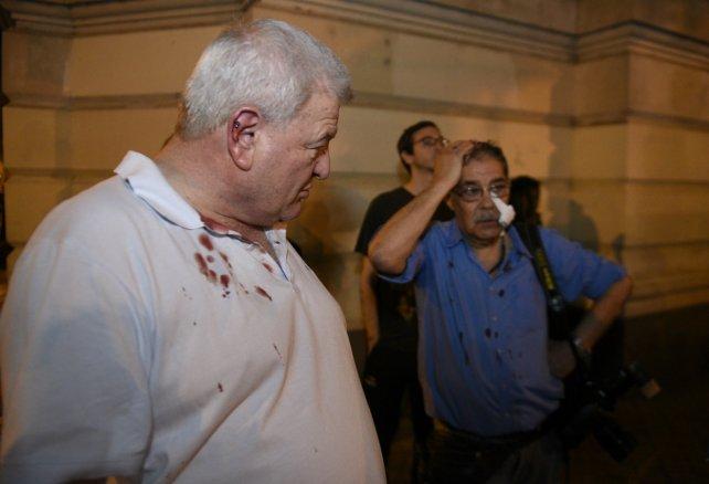 Alberto Furfari y José Granata, dos de los periodistas heridos.