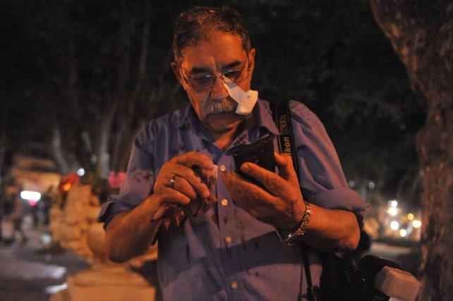 José Granata, tras ser herido en la plaza.