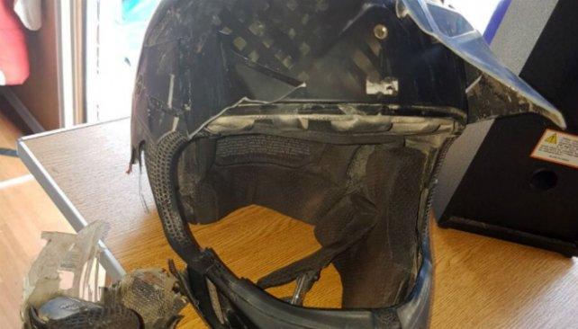 La cámara de video le atravesó el casco en el impacto y le desprendió la oreja.